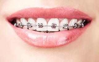 Braces on teeth close up